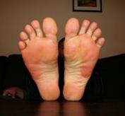 leif feet post odrfh